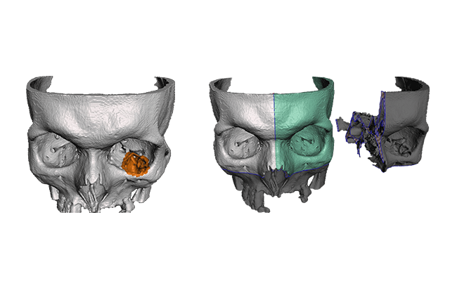 ZORTRAX 3D Printed Skull Facial Reconstruction Surgery